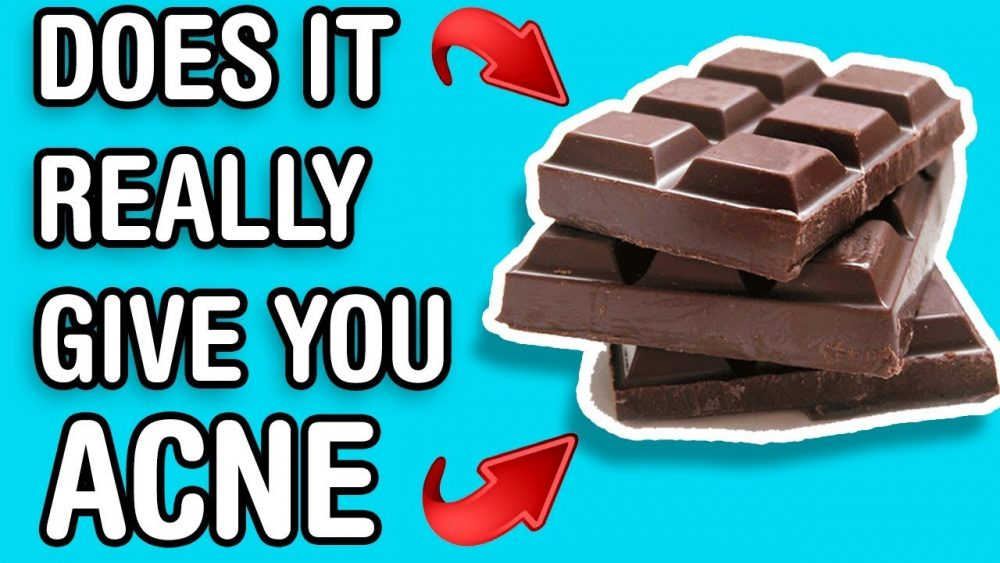 chocolate gives you acne food myths
