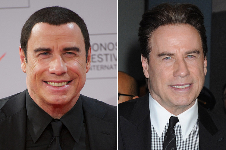 10 john travolta celebrity hair transplants