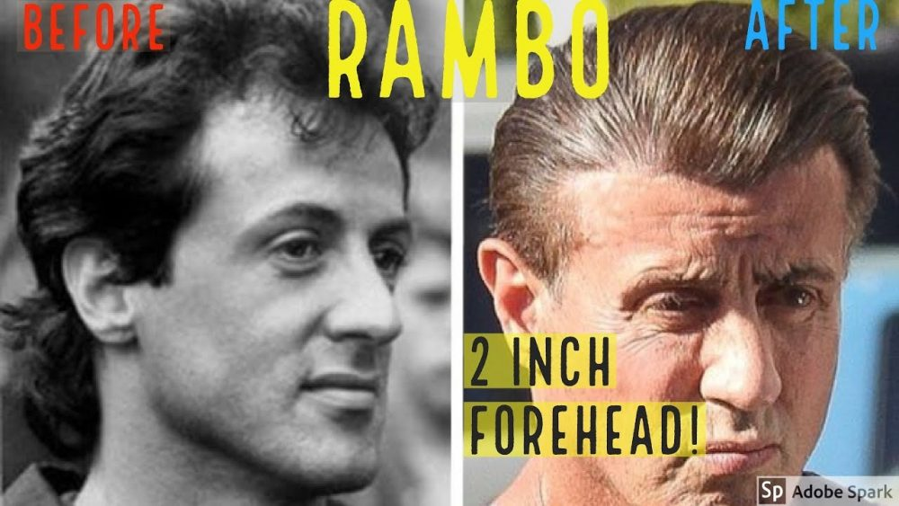 sly stallone celebrity hair transplant