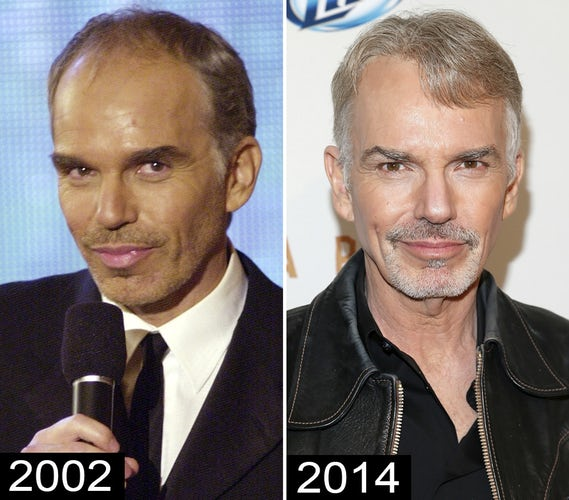 6 billy bob thornton celebrity hair transplants