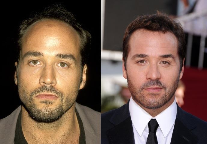 Top 10 Celebrity Hair Transplants Babbletop
