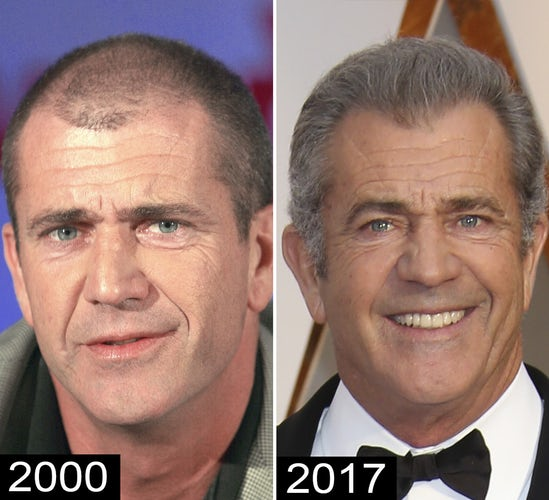 9 mel gibson celebrity hair transplants