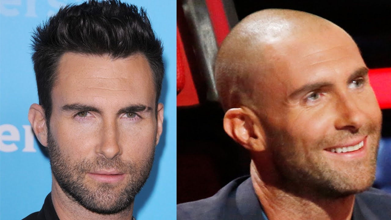 Top 10 Celebrity Hair Transplants Babbletop