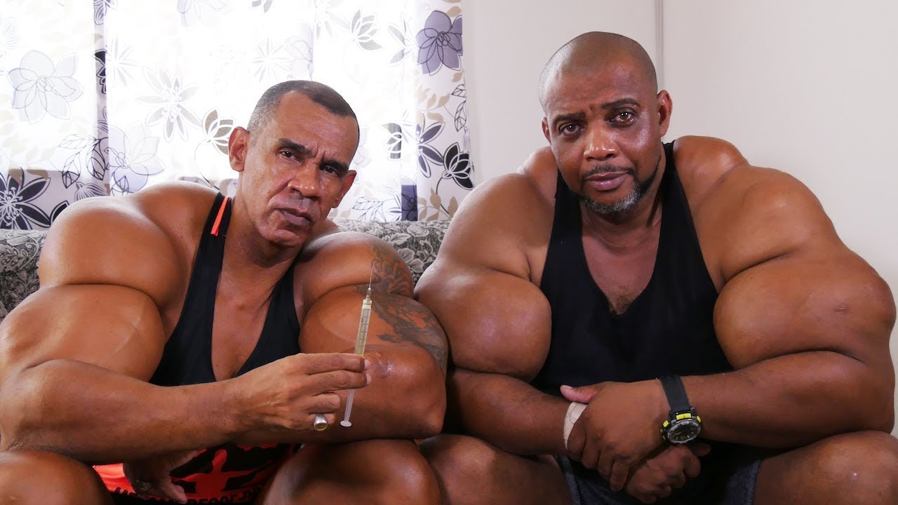 Synthol Bodybuilders